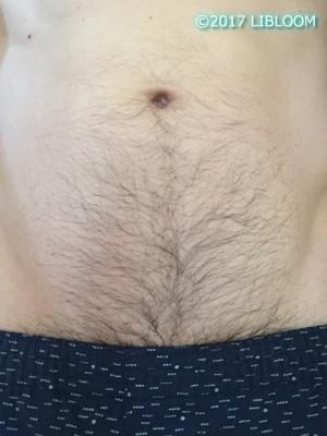 ケノンで腹毛を脱毛|男のヘソ周り、下腹への効果、やり方